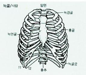 늑골 흉골 및 흉추의 골절